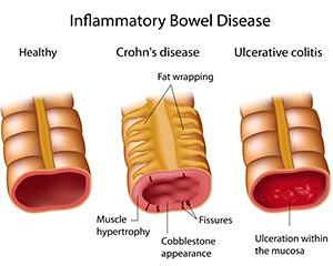 crohn-disease-treatments